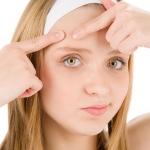 Come prevenire o curare l'acne