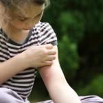 Pizzichi di zanzare: come alleviare prurito e gonfiore