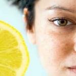 Macchie del viso: rimedi naturali e fai da te