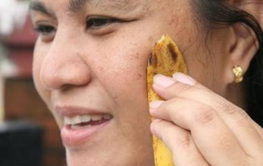 bucce di banana
