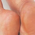 Come prevenire i talloni screpolati