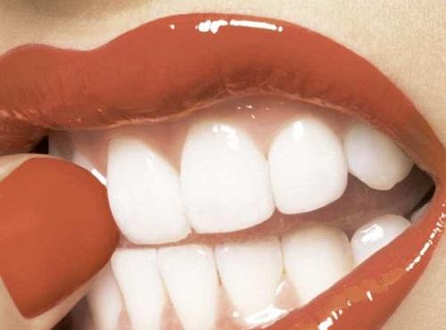 sbiancare-i-denti