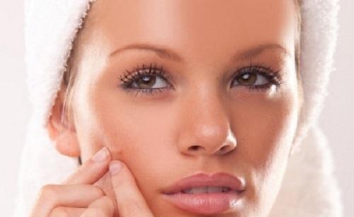 acne-tardiva